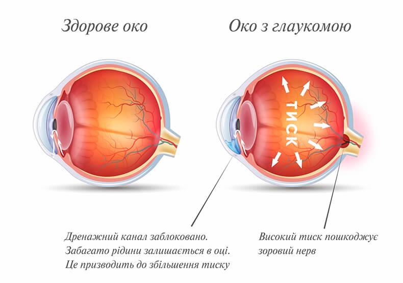 Приклад здорового ока та ока з глаукомою