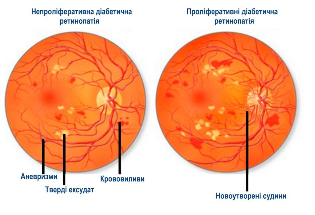 Діабетична ретинопатія