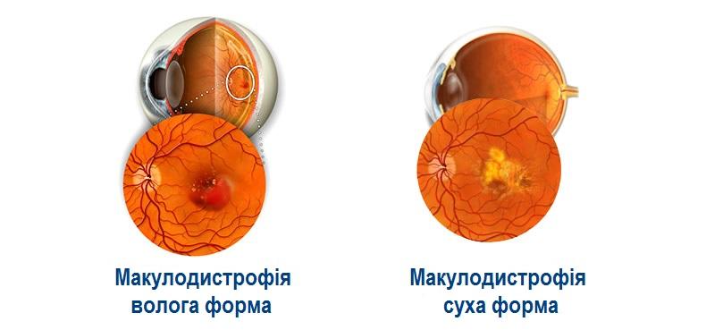 Вікова макулодистрофія (ВМД)